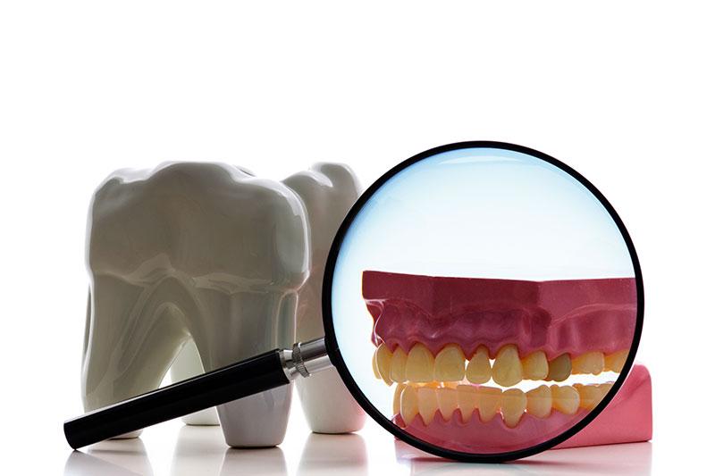 Root Canal - Tarzana Cosmetic Dentistry, Tarzana Dentist