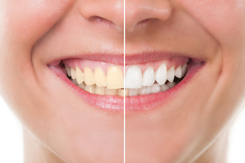 Teeth Whitening - Tarzana Cosmetic Dentistry, Tarzana Dentist