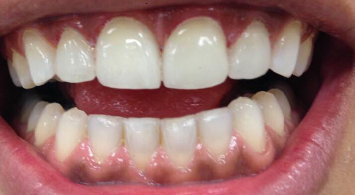Before/After Gallery - Tarzana Cosmetic Dentistry, Tarzana Dentist